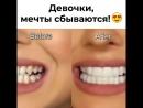 Красивыая улыбка с PERFECT SMILE VENEERS