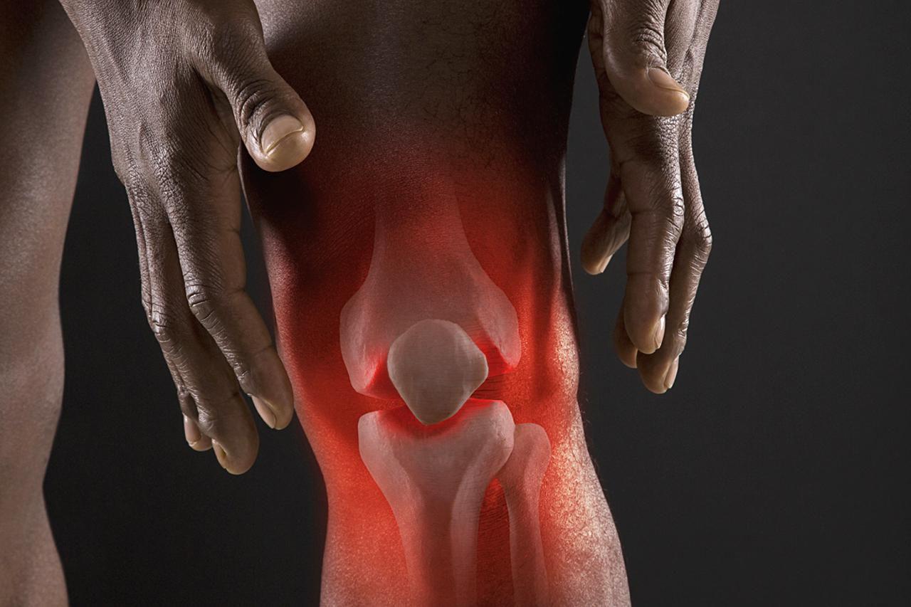 Артрит, боли в суставах и связках – витамины залог решения ваших проблем