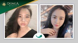 Hình ảnh khách hàng Nâng mũi S Line Dr Park Cấy mỡ mặt tại Đông Á