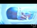 Желтуха у новорожденных Чем могут помочь ребенку медики Лечение желтухи Фототерапия