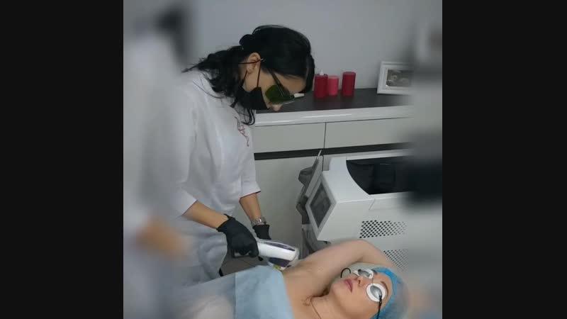 Процедура лазерной эпиляции в Reline