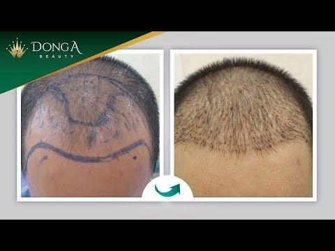 Hình ảnh khách hàng cấy tóc tự thân thành công tại Đông Á
