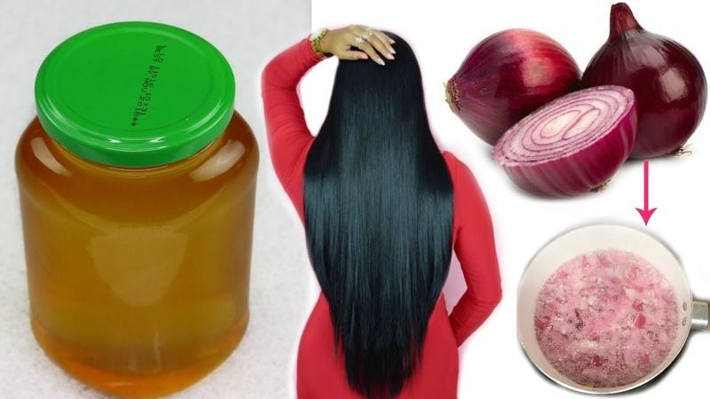 Aceite de Cebolla Casero:Crecimiento extremo del cabello en 7 Dias  Detener la Caida2fashionbycarol