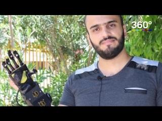 Сирийский студент создал новый протез