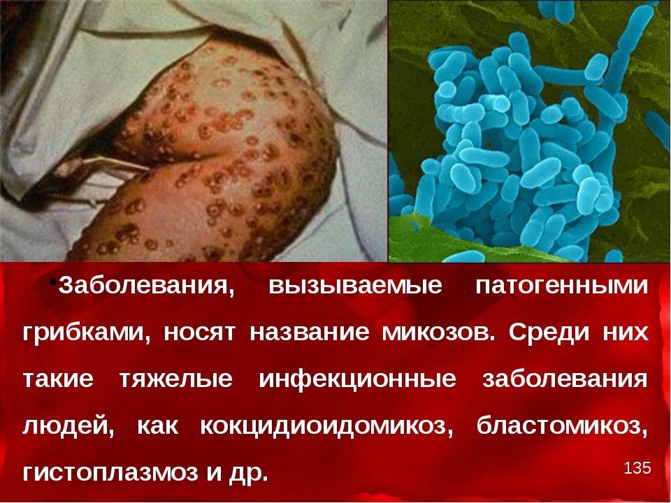 Признаки гриба в организме человека