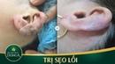 Trị sẹo lồi ở tai CỰC KHỦNG do bấm lỗ tai để lại - YouTube