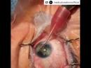 Удаление катаракты