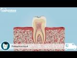 Виды и стадии кариеса. Как развивается кариес зубов