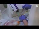 Какие варианты лечения методом базальной имплантации возможны и какой срок службы протезов