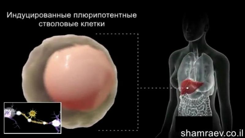 Рассеянный склероз и стволовые клетки 3 фильм