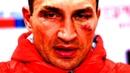 Wladimir Klitschko ⚫ All Losses