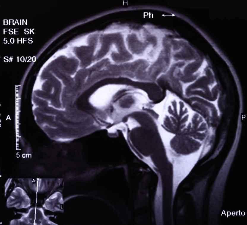 МРТ без контраста часто используются для получения точной картины мозга или спинного мозга