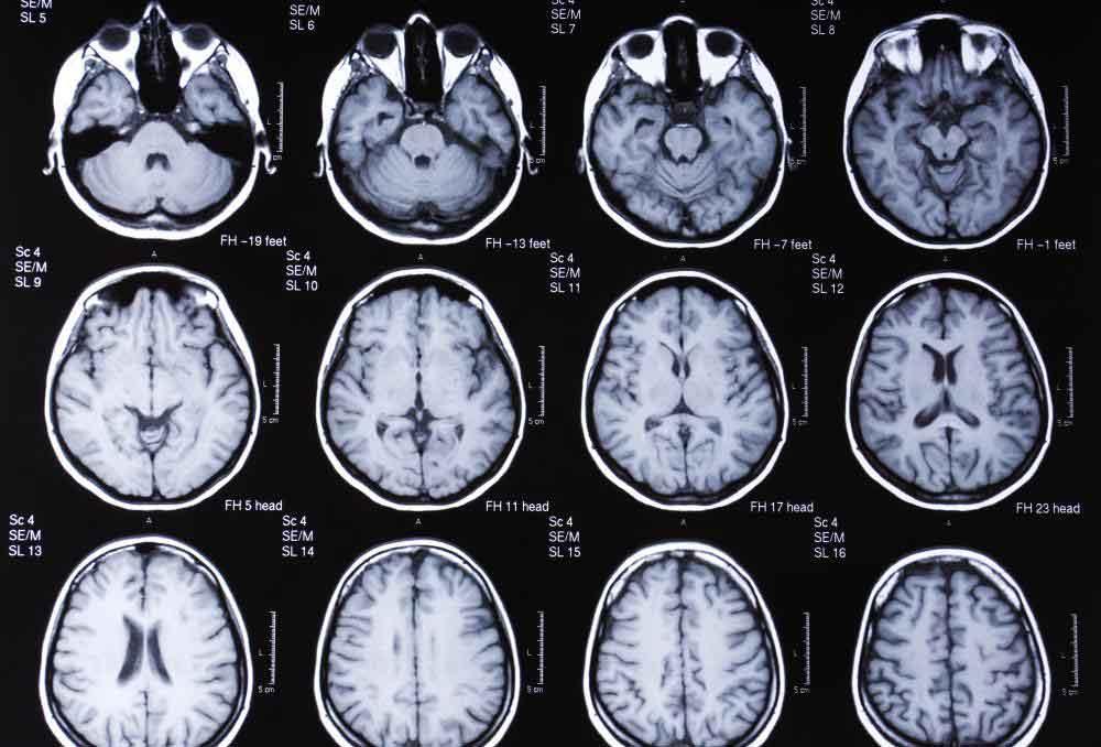 МРТ-сканирование мозга