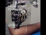 Этот робот может автоматически брать кровь у людей