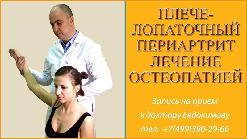 Плечелопаточный периартрит. Лечение остеопатией.Комплекс упражнений при плечелопаточном периартрите