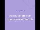 Коррекция губ препаратом Etermis 4