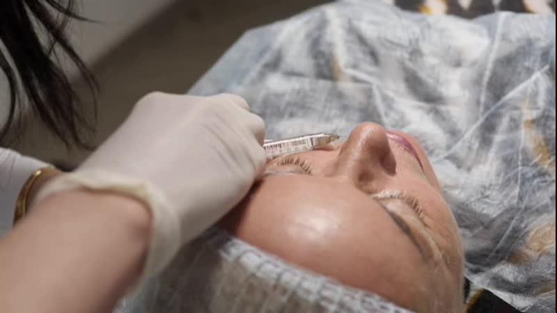 Аугментация губ филлером на основе гиалуроновой кислоты