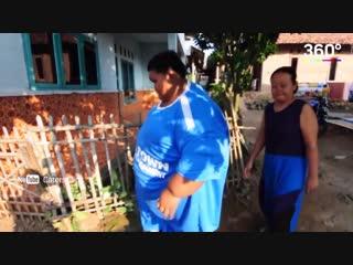 Мальчик из Индонезии похудел