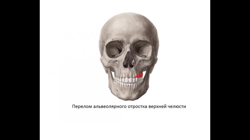 Челюстно лицевая хирургия Перелом альвеолярного отростка верхней челюсти слева со смещением