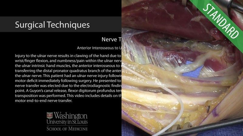 Anterior Interosseous to Ulnar Motor Nerve Transfer - Standard