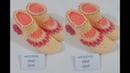 2 Şiş İle Çiçek Ve Boncuk Süslemeli Kolay Bayan Patiği / Çetiği Yapımı. 37 ..38 numara