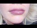 Увеличение губ, контурная пластика Кемерово