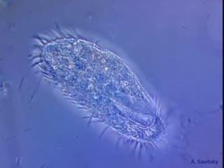 Инфузории urostyla sp. фазовый контраст. 500х; 1000х