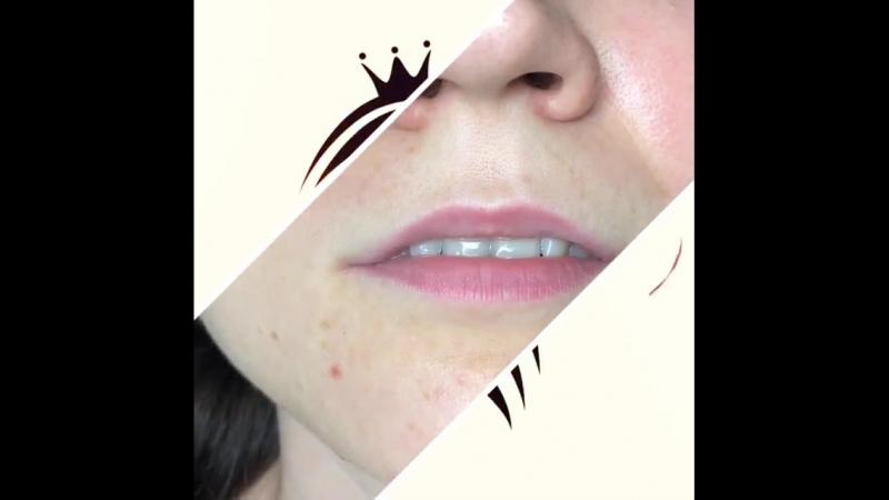 Перманентный макияж губ сразу после процедуры Мастер Наталья С