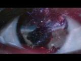 Achillea (Jens Gad) - Amadas Estrellas