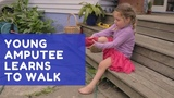 Young amputee learns to walk