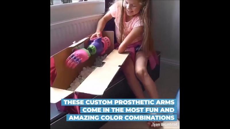 На 3д принтере печатают протезы