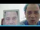 Trực Tiếp Phẫu Thuật Cắt Cung Mày Nam - Viện Thẩm Mỹ Hà Nội
