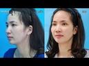 Nhấn mí - Cắt da chùng cung chân mày - Viện thẩm mỹ Hà Nội