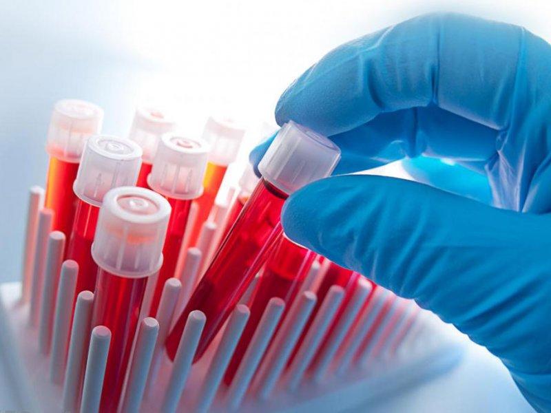 Определение групповой совместимости крови по антигенам эритроцитов