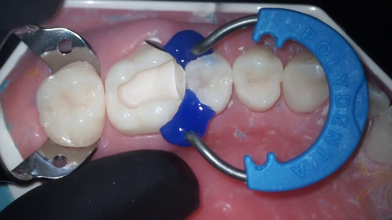 DentalПлюшки 37- про матрицы