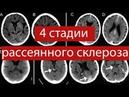 4 СТАДИИ рассеянного склероза. КАК они проявятся и как их распознать?