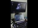 Dawei DW T70 fetal heart exam