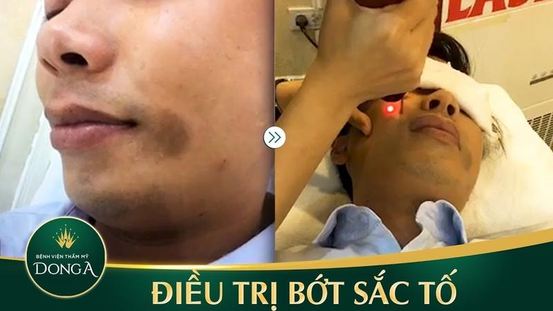 Quy trình điều trị bớt sắc tố bẩm sinh bằng laser như thế nào - YouTube