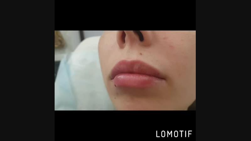 Увеличение губ филлером гиалуроновой кислоты Huyluform deep 1 0ml