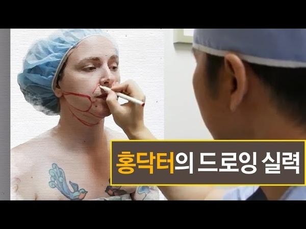 프레쉬 성형외과 외국인환자(얼굴지방흡입,팔자필러시술)(Foreigner patient at Fresh Plastic Surgery)