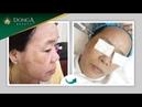 Kết quả sau 5 lần điều trị nám mảng tại TMV Đông Á