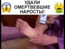ЭЛЕКТРИЧЕСКАЯ ПЕМЗА PEDI SPIN НАБОР НАСАДОК