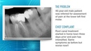 Advances in Endodontic Treatment Part 1--Diagnosis and Treatment Planning