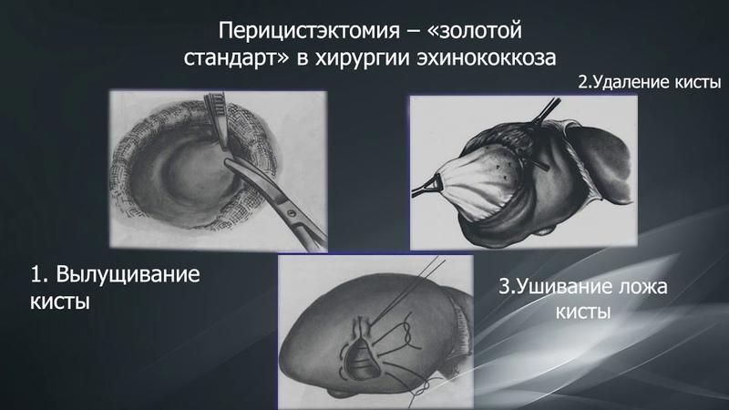 Эхинококкоз печени. Современные методы диагностики и лечения