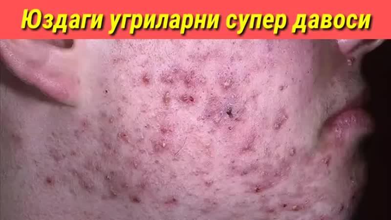 Юзимдаги угрилардан 1 кунда холос булдим лечение прыщи на лице mp4