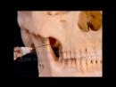 Мандибулярная анестезия.Техника Акинози-Вазирани
