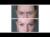 До и после коррекции морщин с помощью препарата Ботокс