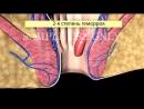 Лечение ГЕМОРРОЯ. Степени геморроя