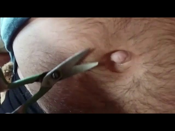 Outie belly button hair trimming
