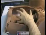 Техника массажа матки на кулаке в акушерстве